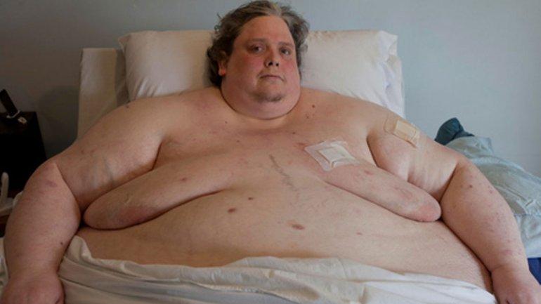 más gordo iyottube