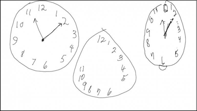 Los tres casos: un reloj dibujado por una persona sana, uno de una con Alzheimer y otro de una persona con mal de Parkinson