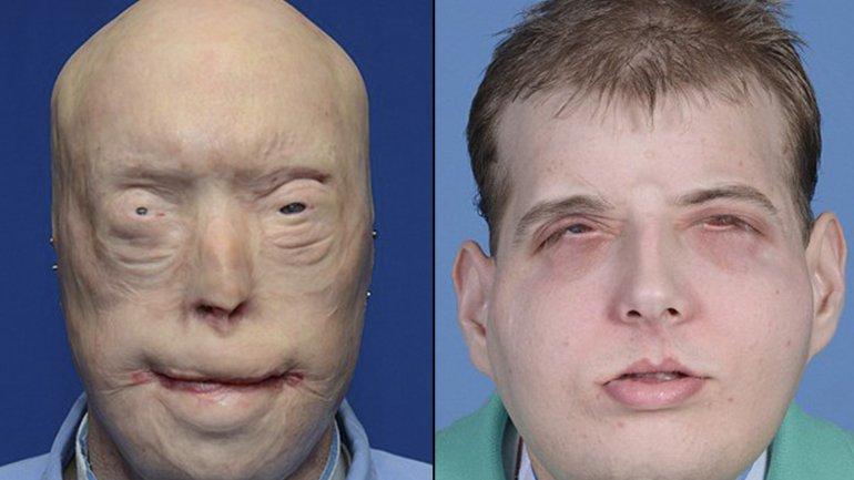 Pat Hardison después y antes de su transplante de rostro