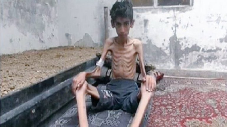 23 personas murieron de hambre en Madaya