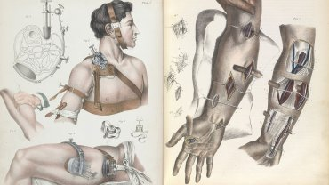 El libro Crucial Interventions muestra cómo eran las cirugías sin anestesia entre los siglos XVII y XIX.