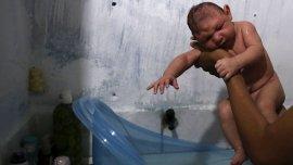 Juan Pedro, de dos meses, nació con microcefalia en Recife, Brasil