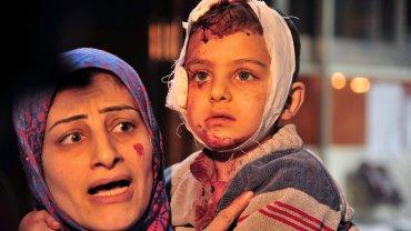 Una mujer y su niña, ambas lastimadas, reclaman atención en Damasco tras el atentados de ISIS