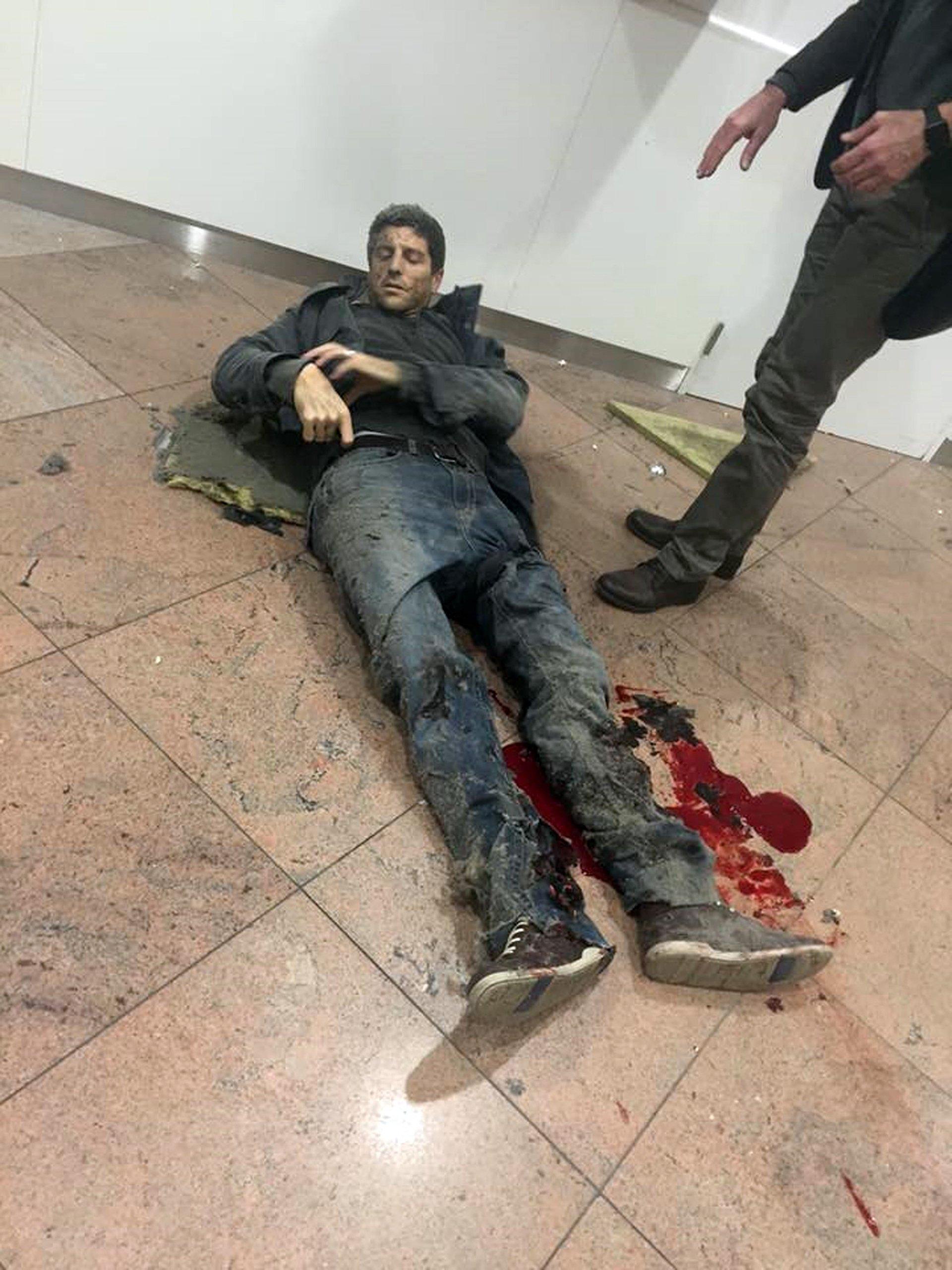 Un hombre herido espera por asistencia médica en el aeropuerto de Bruselas