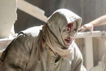 Una mujer herida, tras un ataque aéreo en la zona rebelde del viejo Alepo.